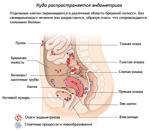 органы мишени при эндометриозе