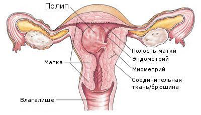 что такое полип эндометрия в матке фото
