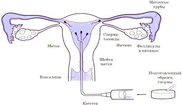 kak-spermatozoydi-sheyku-matki