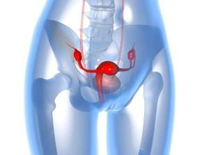 МРТ кисты яичника