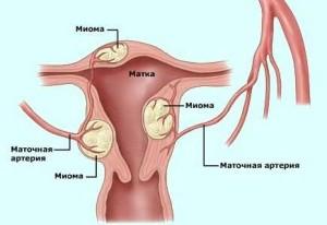 Первые признаки молочницы у женщин (с фото)