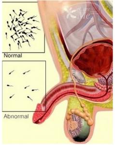 о болезни олигоспермия