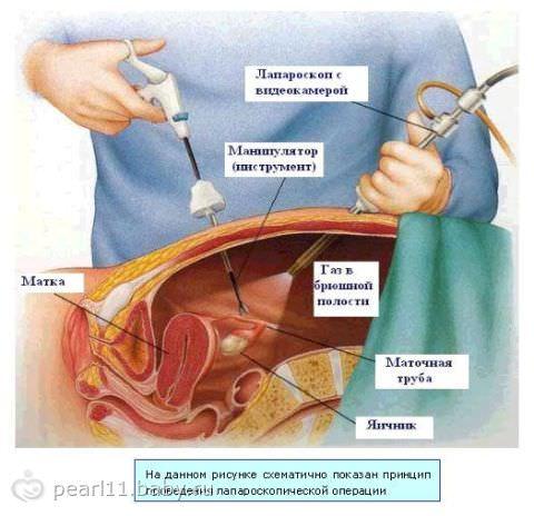 Схема проходимости маточных труб