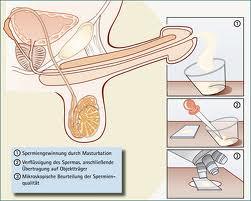 Как сдают сперму на плодотворность фото 690-2