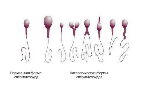 Причины тератозооспермии